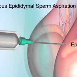 Kehamilan setelah PESA-ICSI kasus azoospermia
